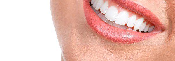 Garanties dentaire